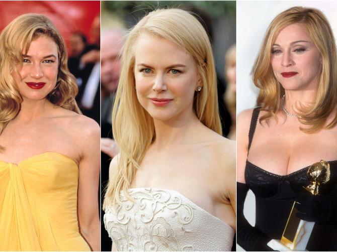 Svetske lepotice koje dobro znate, danas više ne izgledaju ovako: BOTOKS ih je upropastio načisto