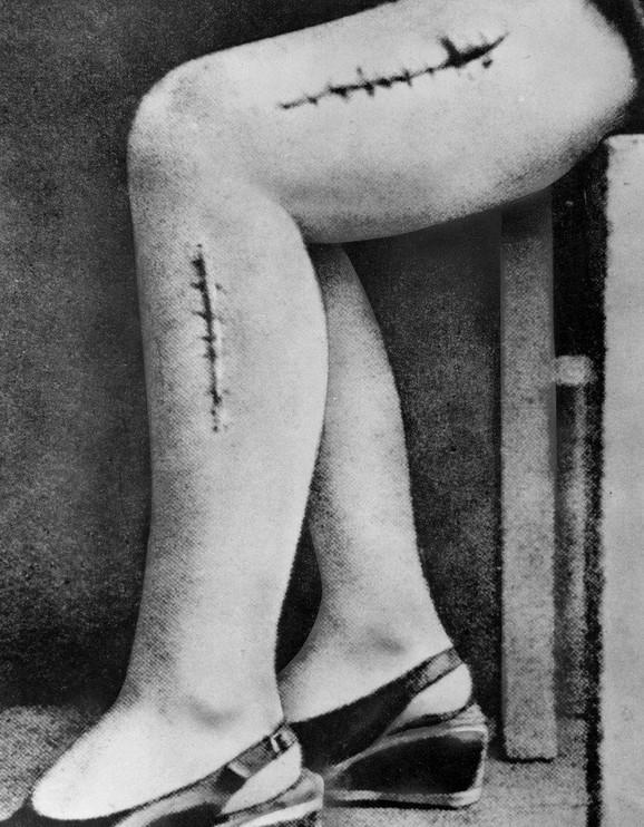 Rane na nogama žene koje su nacistički