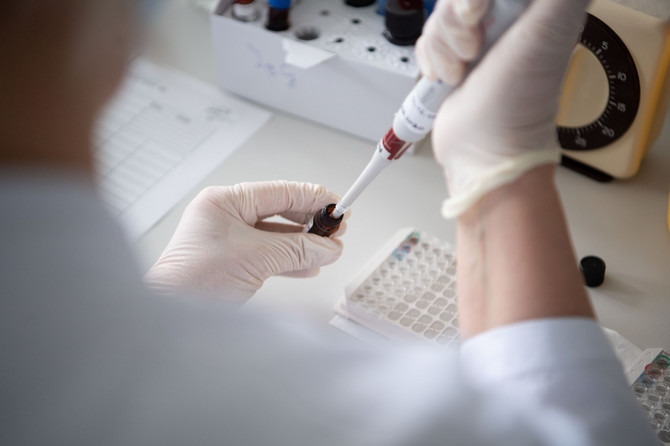 Ako se bris ne uzme pravilno duboko iz nosnoždrelnog predela - test takođe može biti lažno negativan