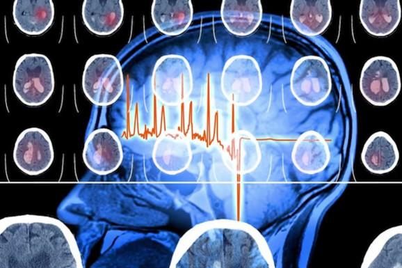 Ovi simptomi najavljuju MOŽDANI UDAR: Ako ih osetite, odmah kod lekara! (VIDEO)