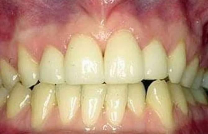 Ako su vam desni zdrave, i zubi su zdravi