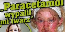"""""""Paracetamol wypalił mi twarz"""""""