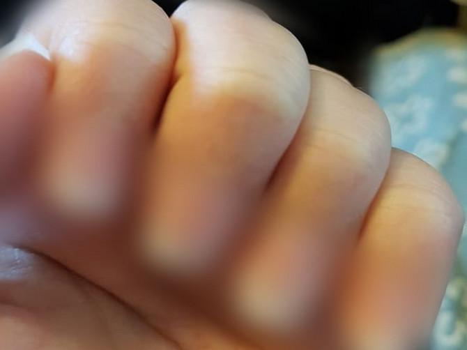 Otišla sam na manikir i rekla kozmetičarki da je loše uradila nokte: Usledila je BOLNA AGONIJA a ovo su sad moji nokti