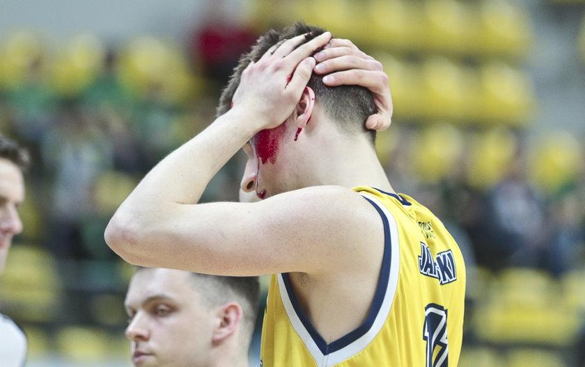 Ostre starcie w meczu koszykówki. Zawodnik zalał się krwią