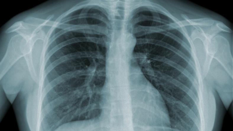 Na Warmii i Mazurach na 100 tys. osób wykryto 20 chorych na gruźlicę