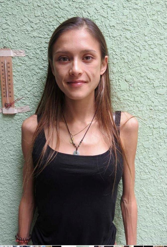 Mai Kerivel je želela da bude sve mršavija i mršavija