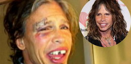 Steven Tyler bez zębów. Foto