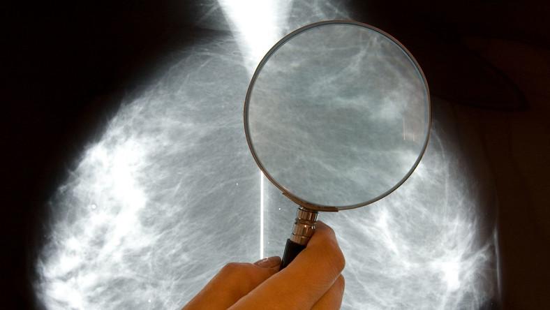 Wynik mammografii