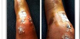 Ślicznotka z pokiereszowanymi nogami. Zobacz mocne zdjęcie Lindsey Vonn