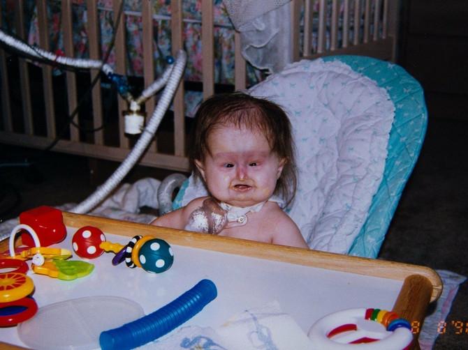 Novorođenče je izgledom zaprepastilo lekare: Niko nije umeo da otkrije ŠTA JOJ JE, a 20 godina kasnije IZGLEDA OVAKO