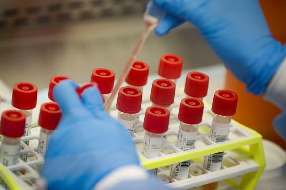 Testiranje uzoraka potencijalno zaraženih