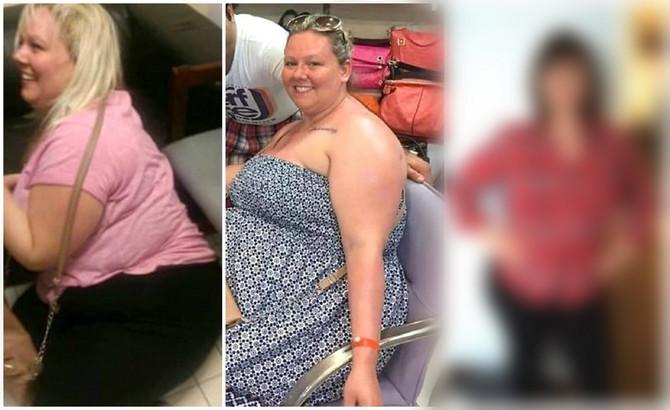 Kimberli kaže da je bila toliko gojazna da nije mogla da gleda TV