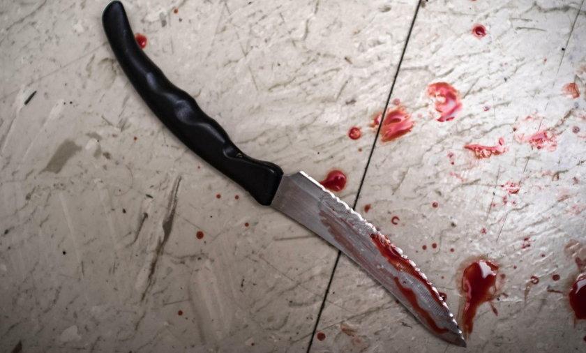 Brutalny atak na 30-letniego Polaka w Szkocji
