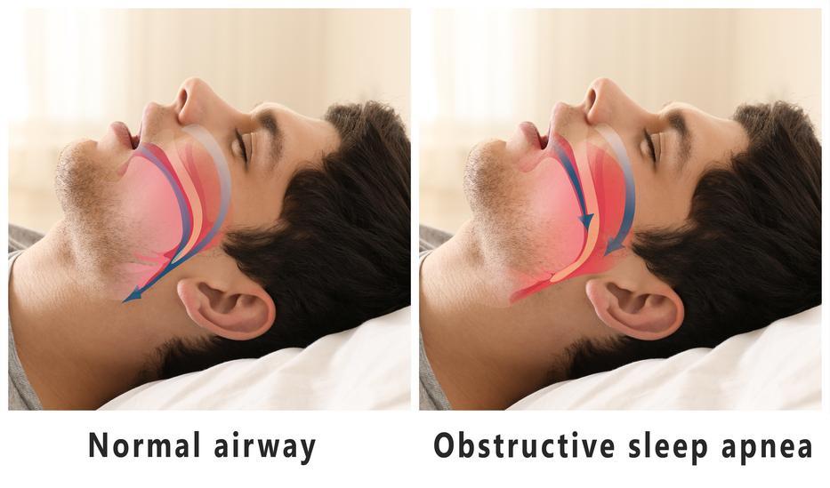 a fogyás megállítja az alvási apnoét hogyan lehet karcsúsítani a vag