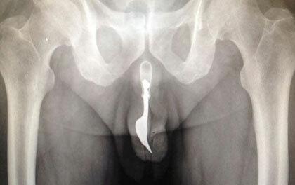 pénisz röntgen alatt