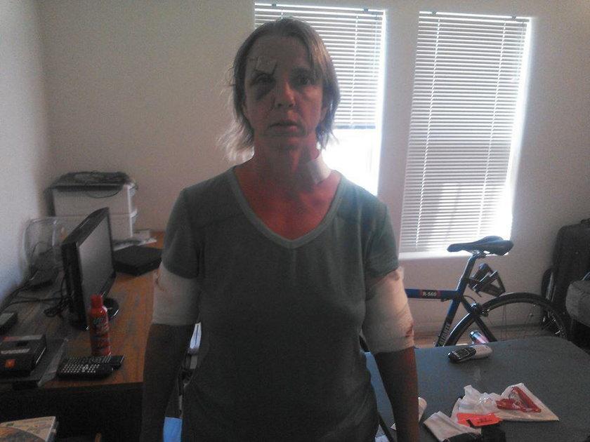 Niedźwiedź zaatakował Karen Williams, uczestniczkę maratonu!