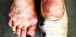 Jurorka TVN pokazała oszpecone stopy