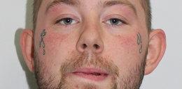 Oblał kwasem 21-latkę i jej kuzyna. 24-latek zgłosił się na policję