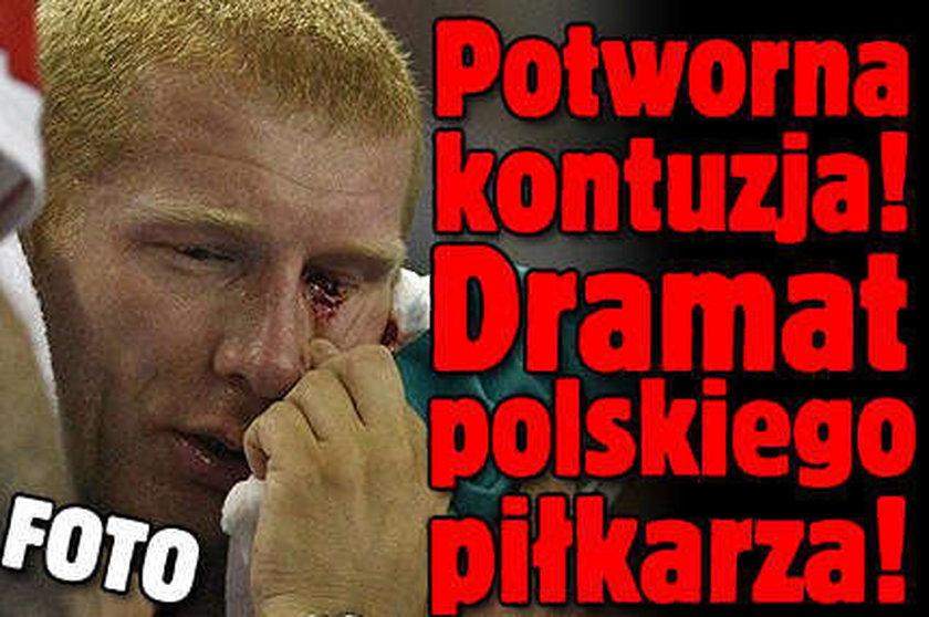 Potworna kontuzja! Polski piłkarz o mało nie stracił oka! FOTO