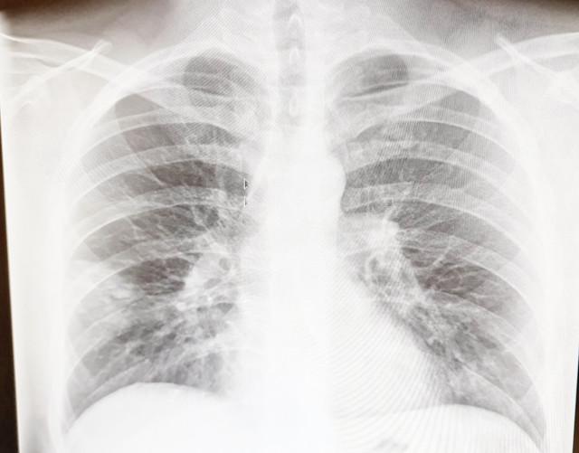 Obostrana upala pluća