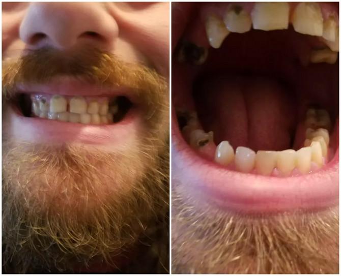 Moji zubi izgledaju ovako