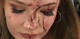 Koszmar na urodzinach! Nastolatka zalała się krwią