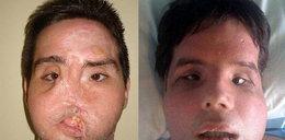 Przeszczepili mu twarz. Drastyczne zdjęcia!