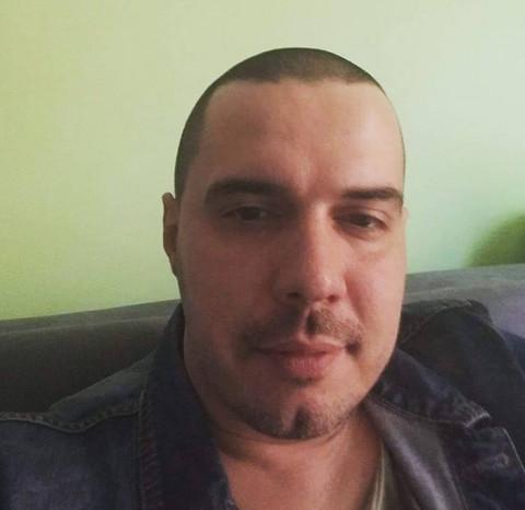 Pretučen pevač koji boluje od bipolarnog poremećaja?! Šok fotografije unakaženog lica isplivale u javnost! FOTO