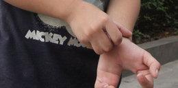 Chłopiec-mutant. Ma szczypce zamiast dłoni. Zdjęcia