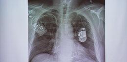 Wszczepili pacjentom superstymulator serca