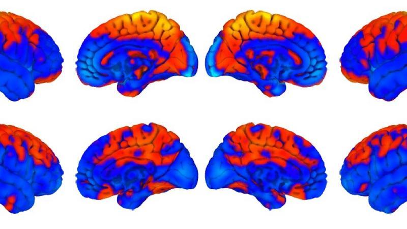Podróże kosmiczne zmieniają mózg