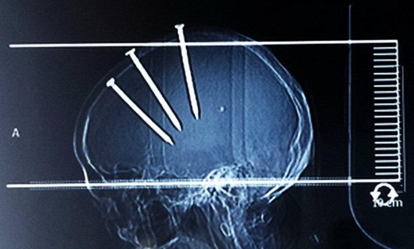 Mężczyzna miał 3 gwoździe w mózgu i przeżył