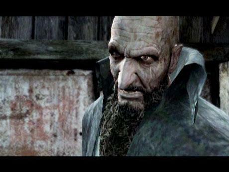 """<P>16. Bitores Mendez (<A HREF=""""http://gry.onet.pl/1034,0,1,Resident_Evil_4,segregator_detal.html"""" TARGET=""""_blank"""">Resident Evil 4</A>)  </P>Ze wszystkich łysych postaci na tej liście, to Bitroresa Mendeza nie chcielibyście nigdy spotkać. Jest on odrażaj"""