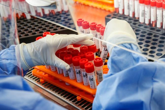 Teško je utvrditi bez testiranja da li je pneumonija rezultat korona virusa ili druge respiratorne infekcije