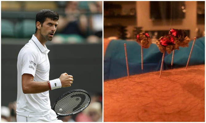 Novak se podvrgao alternativnoj metodi oporavka