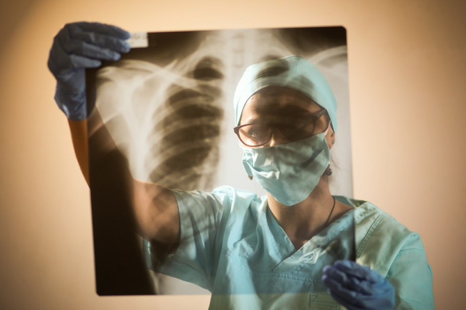 Vežbe su standardna procedura kod bolesnika sa astmom i hroničlnom opstruktivnom bolesti pluća