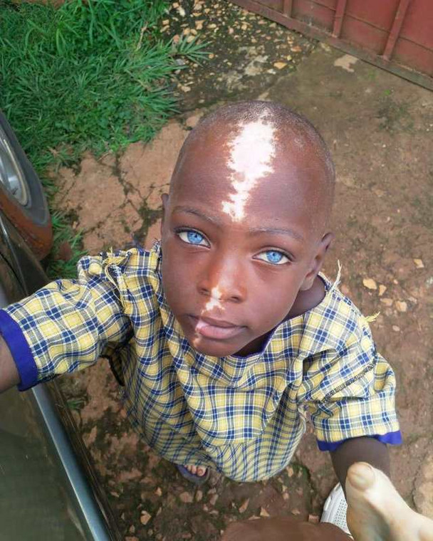 This abandoned little boy becomes internet sensation due to his unique birth mark