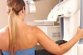 rak dojke statistike smrtnost foto RAS