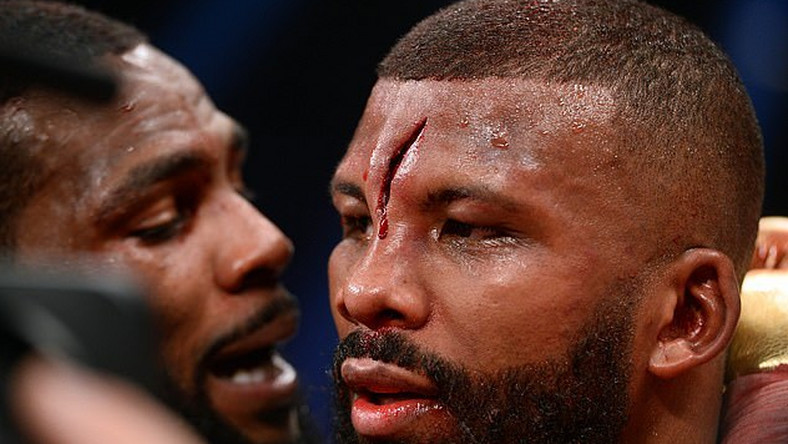 Badou Jack suffered a horrific head injury during his fight with Marcus Browne in Vegas