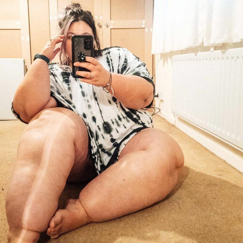 Wielka Brytania. Zoe Pearce cierpi na lipoedemę - obrzęk tłuszczowy nóg