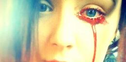 Ta dziewczyna krwawi z oczu
