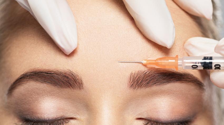 Botox: így segít fejfájás és izzadás esetén - EgészségKalauz