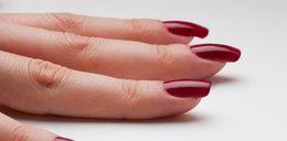 Masz takie plamy na paznokciach? Można je usunąć