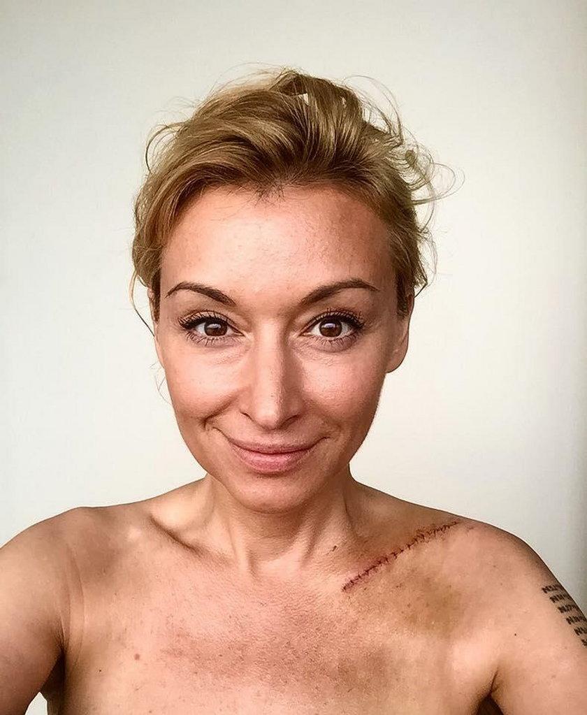 Martyna Wojciechowska z blizną