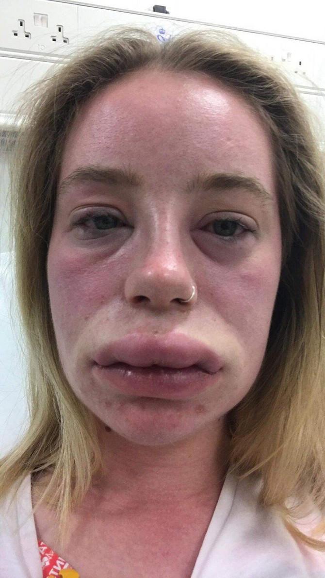 Lidiji u toku napada celo lice otekne