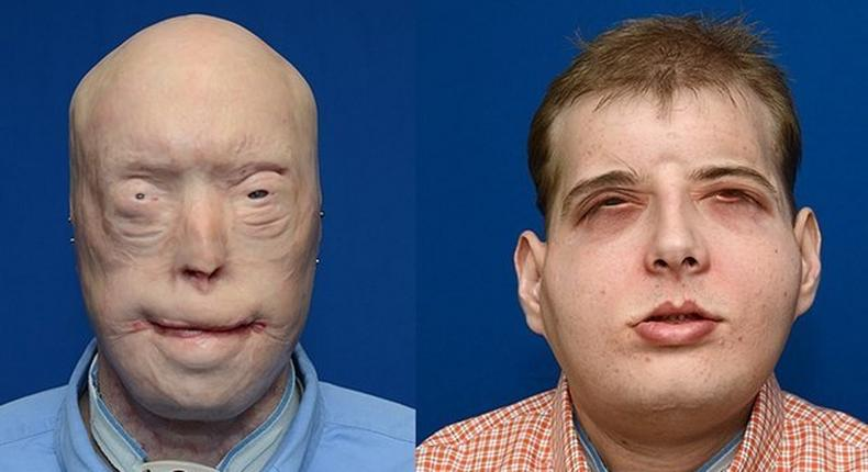 Transplant patient Patrick Hardison before and after his surgery