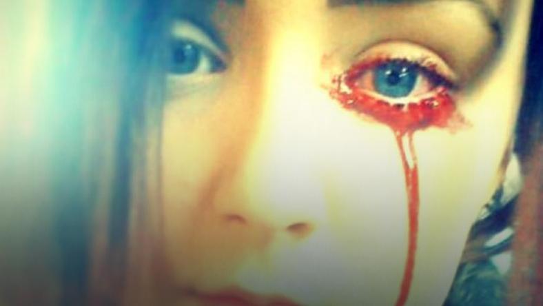 Tej 17-latce leci krew z oczu