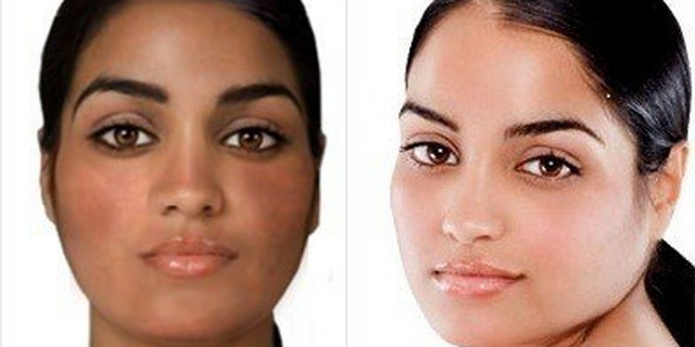 Skin 'bleaching'