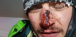 """Bielecki miał wypadek na K2. """"To głębokie obrażenia"""""""