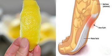 aki citrom és házi tojás összetételével kezelte a pikkelysömöröt